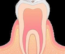 東京都文京区目白台 三井歯科クリニック 一般歯科 虫歯 C0