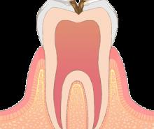 東京都文京区目白台 三井歯科クリニック 一般歯科 虫歯 C2