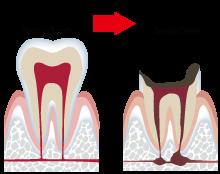 東京都文京区目白台 三井歯科クリニック 一般歯科 健康な歯から虫歯