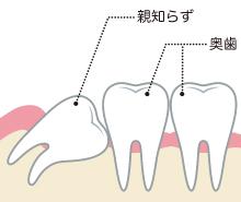 東京都文京区目白台 三井歯科クリニック 親知らず